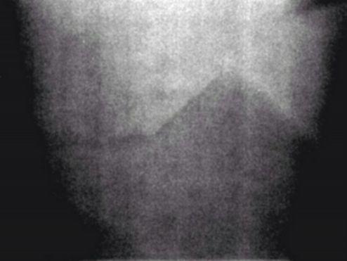 Лунни пирамиди, заснети от Аполо 17