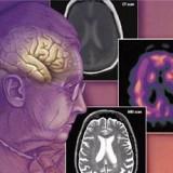 Епидемията от деменция в Русия е по-страшна и от спин